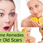 6 Best Home Remedies For Acne Scars
