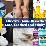 Home Remedies To Treat Dry Feet And Cracked Heels
