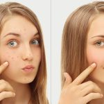 6 Ways To Get Rid Of Dark Spots From Acne Scars
