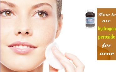 How to use hydrogen peroxide to treat acne