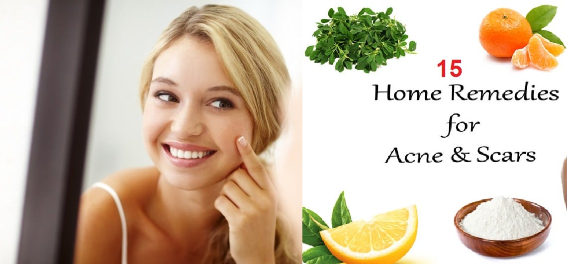 15 top home remedies to remove acne scars