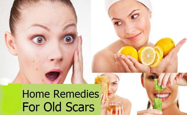 Home Remedies for Acne & Pesky Pimples